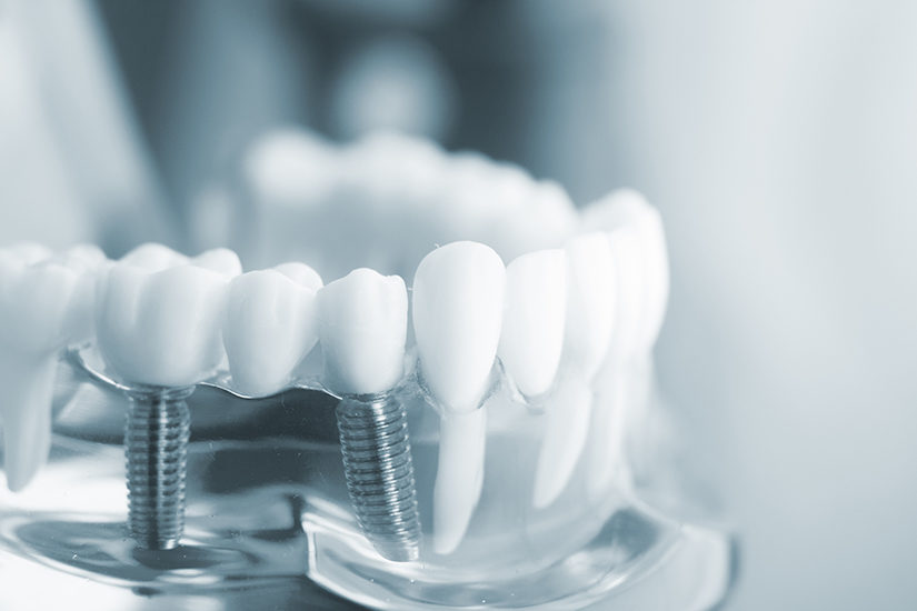 What Is The Difference Between Regular Dental Implants And Mini Implants